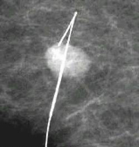 Needle Designed To Pinpoint A Suspicious Lesion Within The Breast Tissue To Be Biopsied